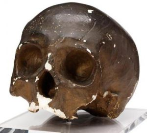 Cast of skull of Corporal John Shaw 2nd Life Guards killed at the Battle of Waterloo on 18th June 1815